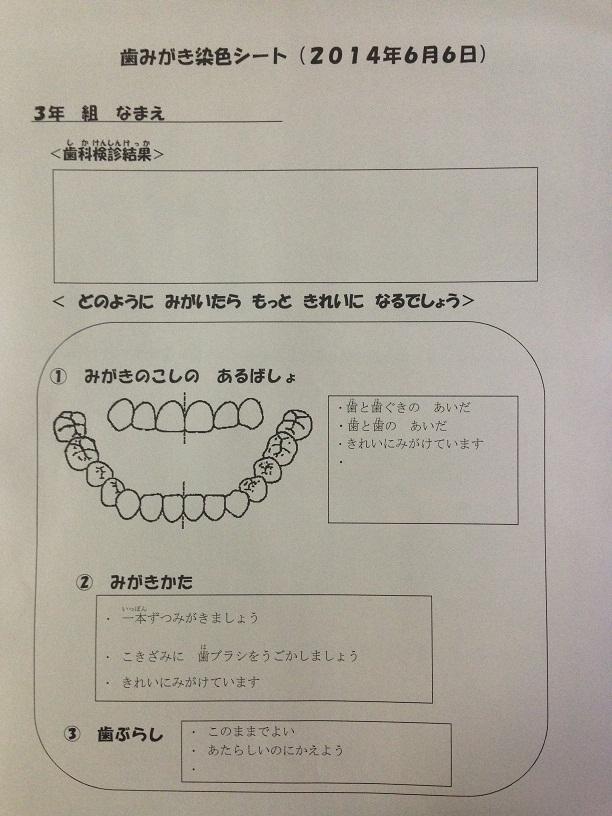 歯磨き指導.jpg